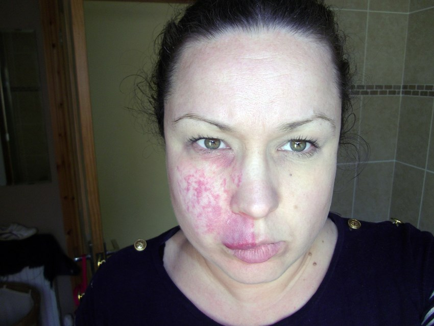 <p><span><strong>Capillary malformation (port wine stain)</strong> <br />  On the right side of face. Started laser treatment with argon laser aged 11 (now age 33). Lots of stints of pulse dye laser, on and off for maybe 15 yrs. </span> <span>Last treatment was approximately 2/3 yrs ago.<br />  <strong>1 of 2  </strong></span></p>