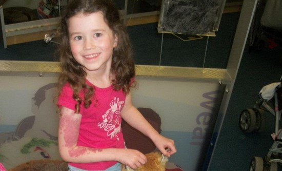 <p><strong>Capillary malformation (port wine stain)<br /> </strong>On the right arm extending onto hand/chest and back. Approx 6 years. No treatment.<br />  <strong>1 of 3 </strong></p>