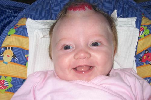 Infantile hemangiomas | Children's Hospital of Wisconsin